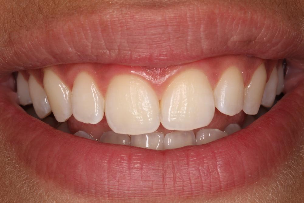 Foto 1 Odontología Conservadora. Sonrisa